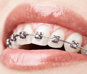 Zahnregulierung - www.zahnarzt-budapest.eu